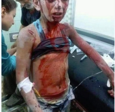 This picture didn't go viral because U.S.-backed terrorists did it — the real Syrian Free Press